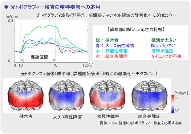 光トポグラフィー資料